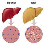 医療コラム:脂肪肝って何ですか?