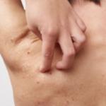 Q医療コラム 大人の汗疹(あせも)について教えてください。